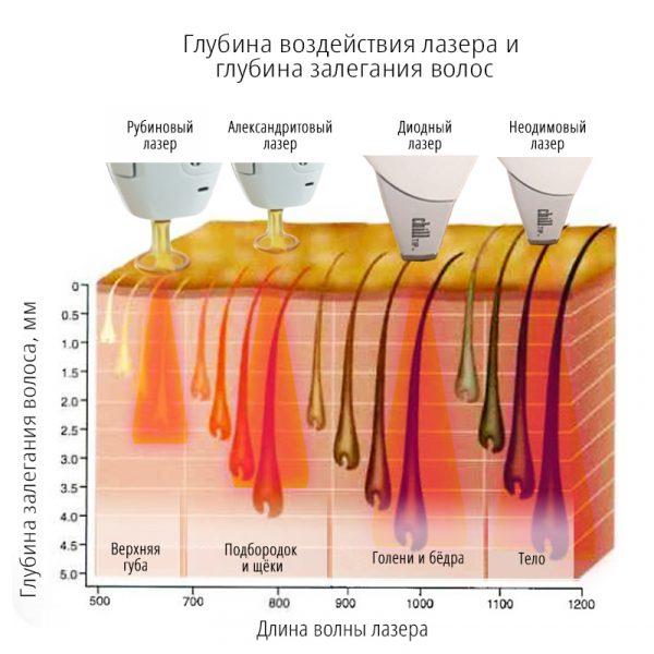 Действие различных лазеров на волосы