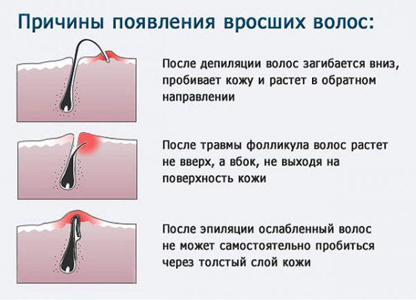 Механизм врастания волос