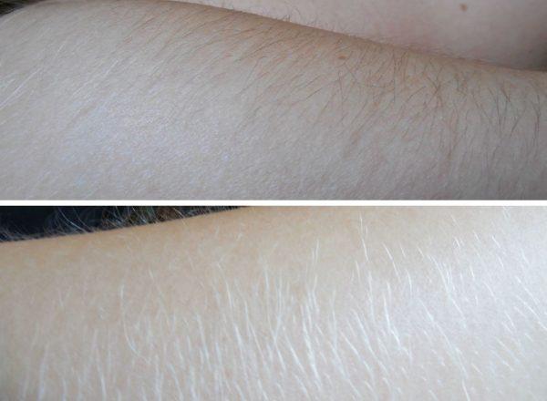 Перекись водорода от нежелательных волос: фото до и после
