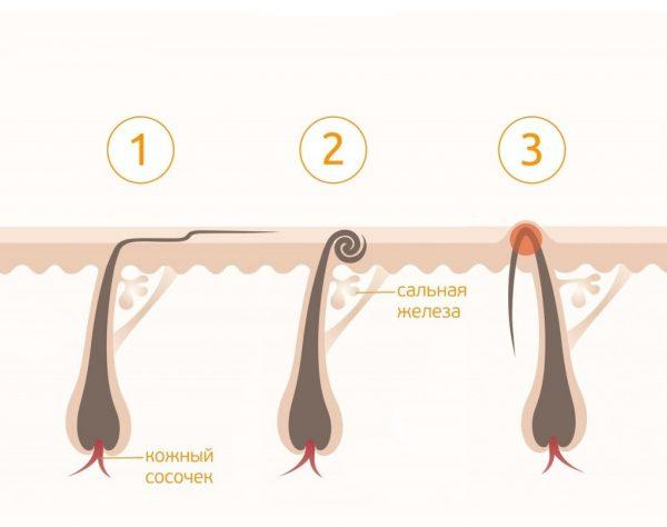 Разновидности врастания волос