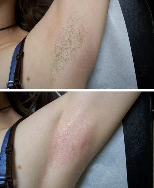 Результат энзимной эпиляции — гладкая кожа