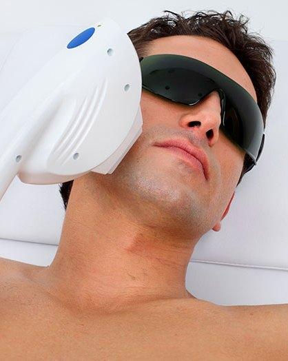 Мужская лазерная эпиляция лица