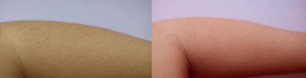 Осветление волос на руках с помощью краски