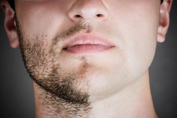 Волосы на лице у мужчин