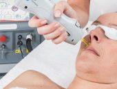 Лазерная эпиляция волос над верхней губой