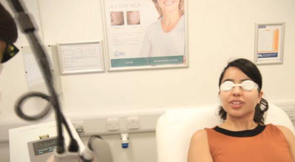 Очки для лазерной эпиляции