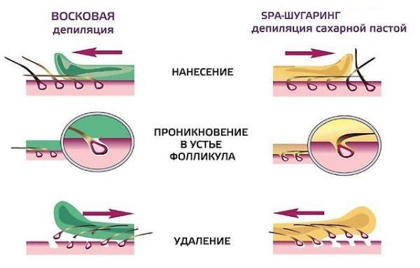 схемы нанесения и удаления воска и сахарной пасты
