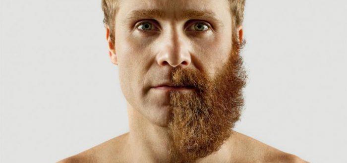 Брить или отращивать бороду