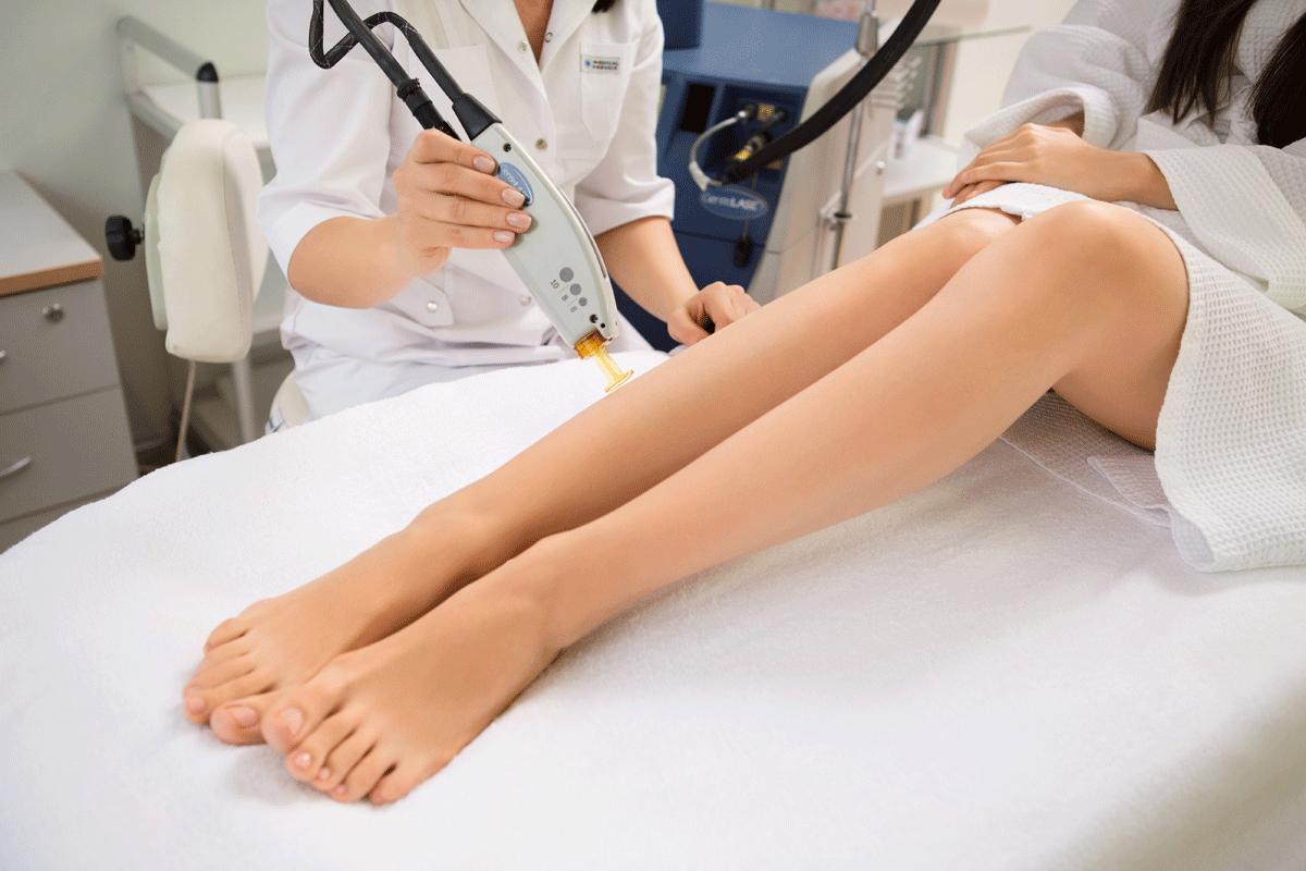Лазерная эпиляция ног: особенности процедуры