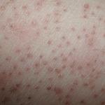 Нормальная реакция кожи после электроэпиляции