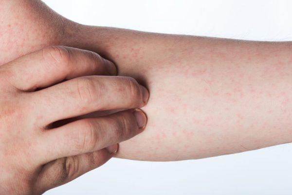 Раздражение кожи на руках