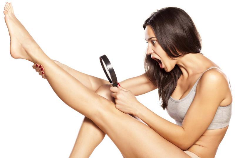 Вросшие волосы: причины возникновения и способы борьбы с ними
