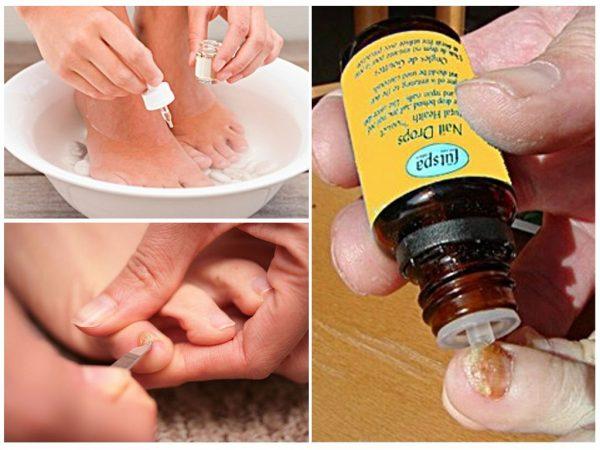 процедура нанесения масла чайного дерева на распаренные ногти