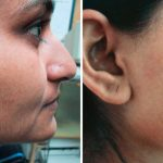 Результат лазерной эпиляции зоны бакенбард и ушей