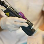 Эпиляция неодимовым лазером