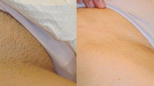 Кожа в зоне бикини после шугаринга: до и после