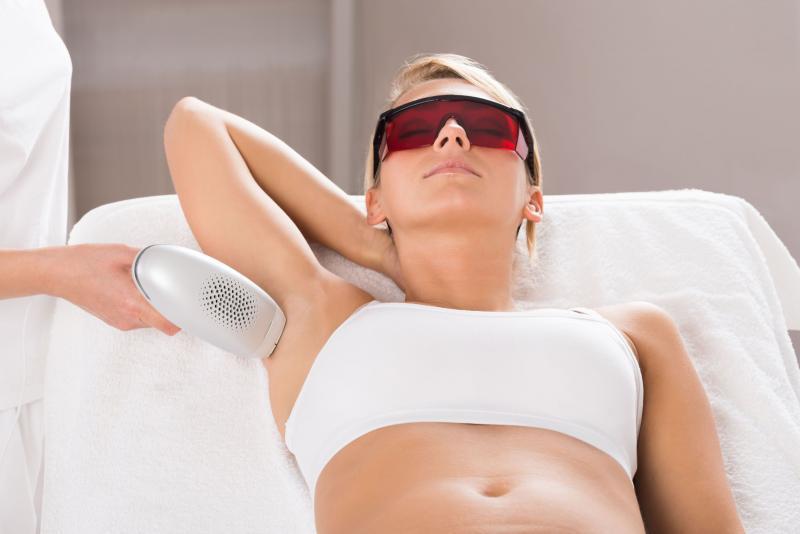 Лазерная эпиляция подмышек: что это такое и как подготовиться к процедуре