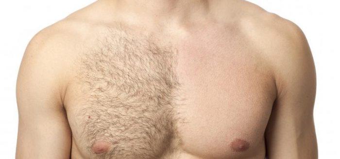 Мужская депиляция груди