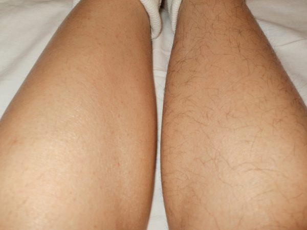 Ноги до и после ваксинга