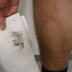 Удаление волос на ногах кремом для депиляции
