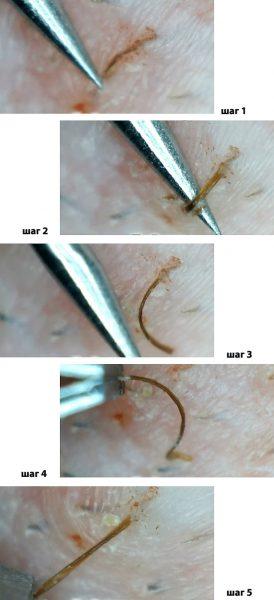 Удаление вросшего волоса