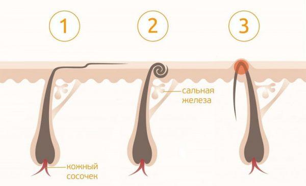 Виды врастания волосков