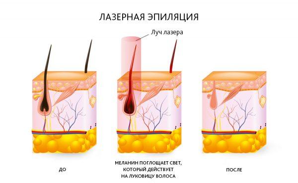 Схема воздействия лазера на волос
