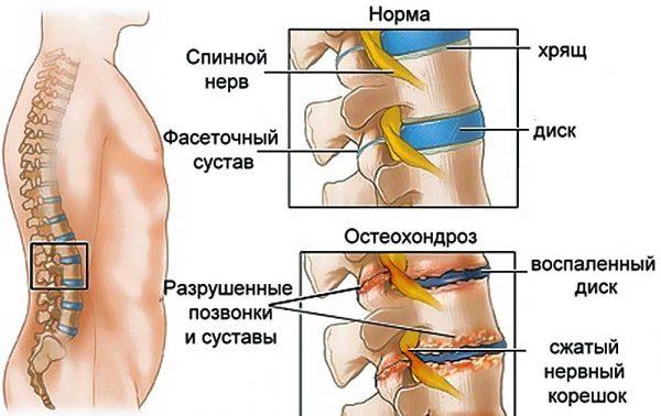 Рисунок этапов развития остеохондроза