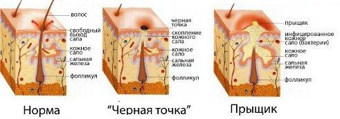 Схема: строение нормальной и проблемной кожи
