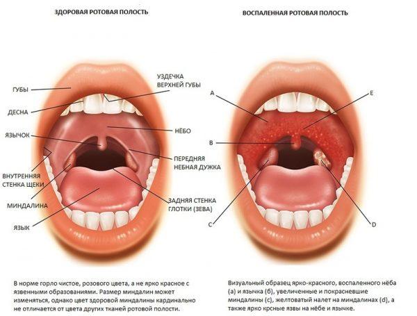 Ротовая полость здорового и больного ангиной человека
