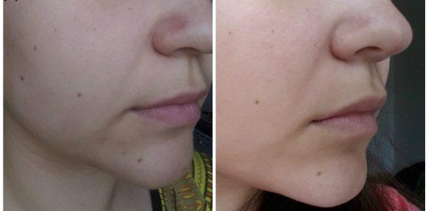 Кожа девушки до и после использования масла жожоба для ухода за кожей лица