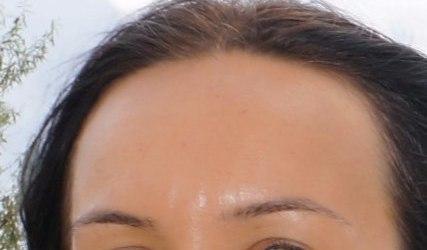 Кожа на лбу женщины после использования масла розмарина