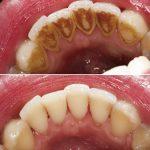 Гингивит, вызванный зубными отложениями
