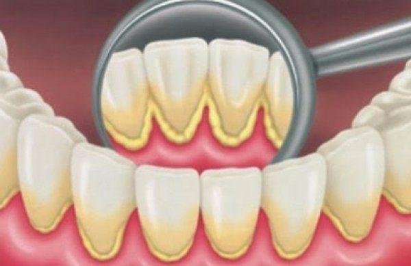 Зубной камень на внутренней стороне зубов