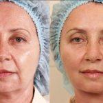 лицо до и после процедуры тредлифтинга