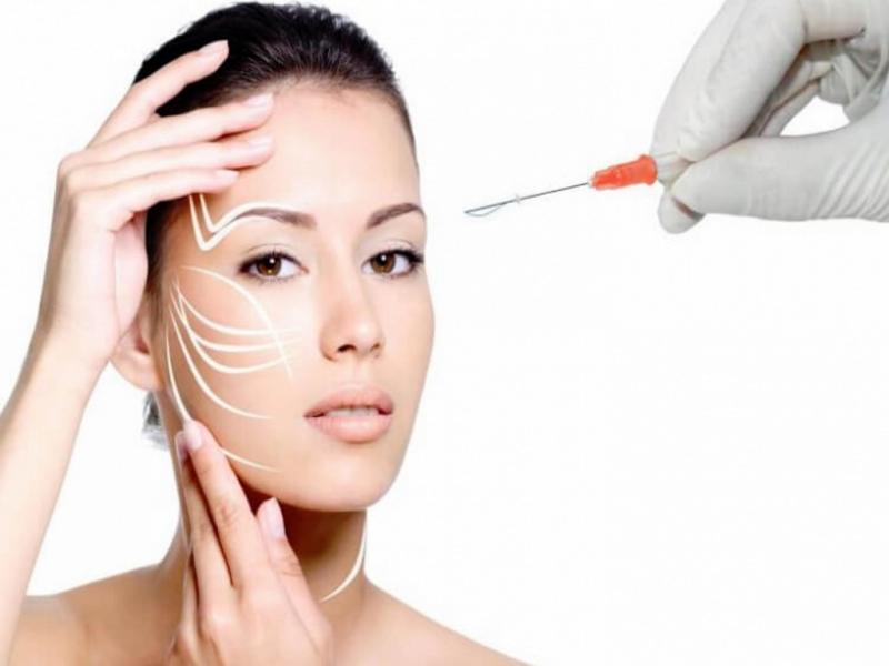 Зачем косметологу арматура: тредлифтинг мезонитями