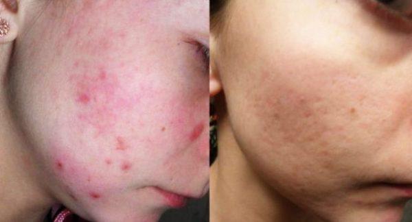 Лицо девушки до и после применения масла чайного дерева