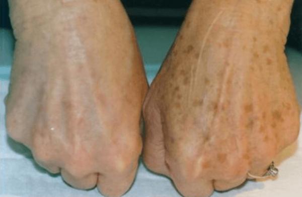 Отбеливание пигментных пятен на руках (до и после)