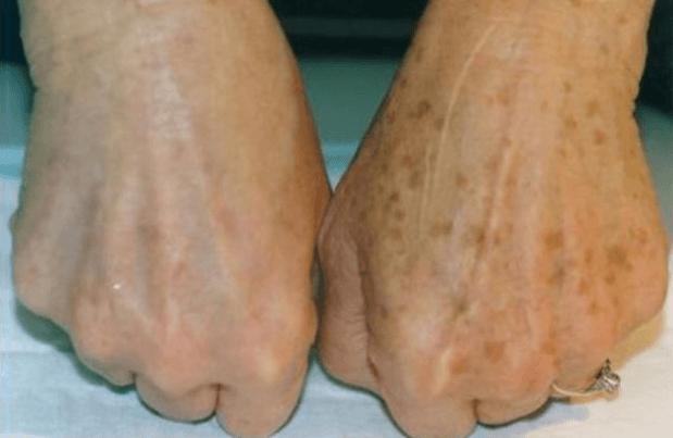 Эфирное масло от грибка ногтей на ногах: действенные способы лечения онихомикоза