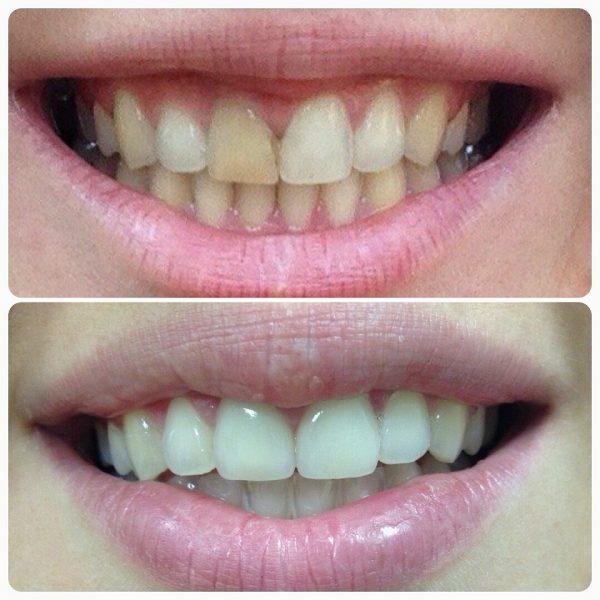 Отбеливание зубов (до и после)