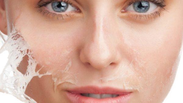 Шелушение кожи после пилинга лица