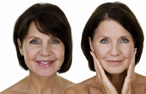 Плазмолифтинг лица — до и после