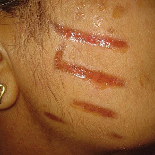 раны на лице после пилинга