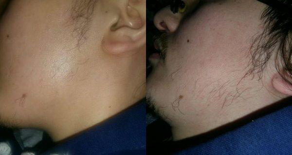 Результат применения репейного масла для бороды