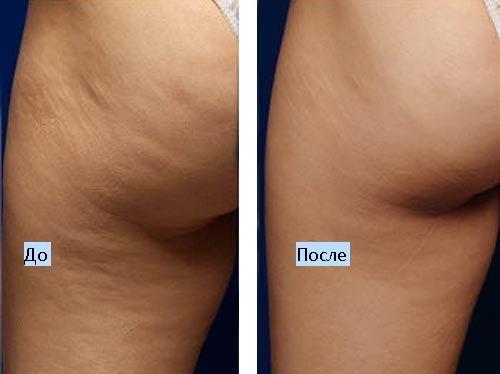 Результат проведения медовых массажей: до и после