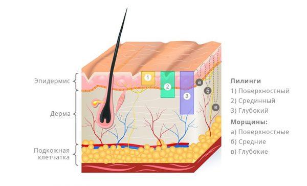 схема строения кожи и воздействия разных по глубине видов пилинга