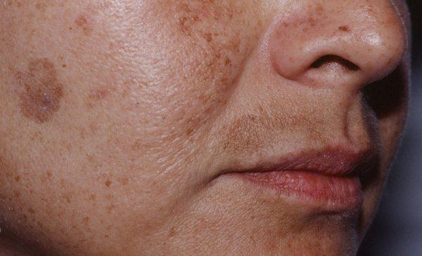 Лентиго на поверхности лица