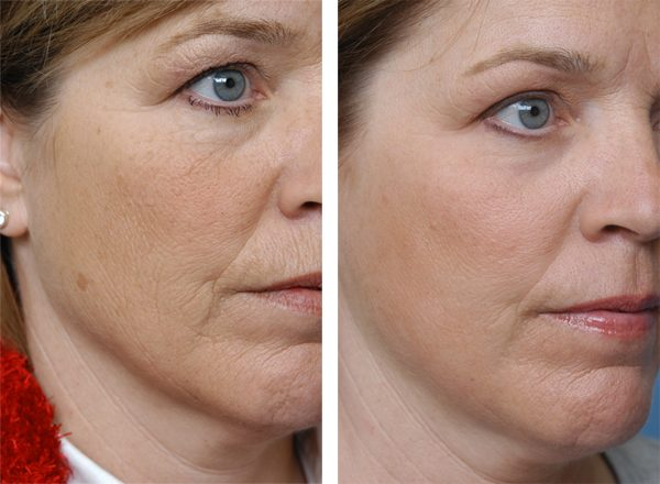 Лицо до и после лазерного омоложения