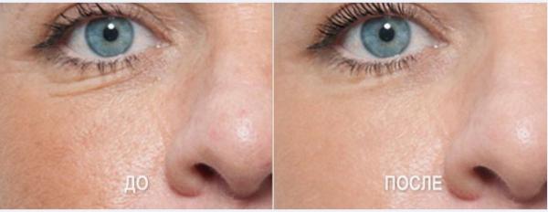 Лицо до и после мезотерапии