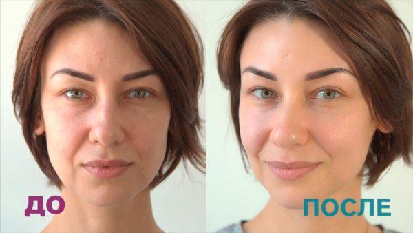 Лицо до и после микротоковой терапии